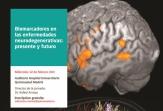 Biomarcadores en las enfermedades neurodegenerativas, próximo encuentro profesional sobre neurología
